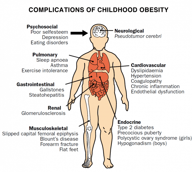 childhood-obesity-health-risk